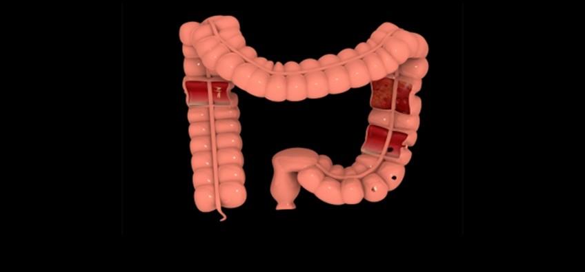 Pesquisadores usam a espectroscopia no infravermelho para analisar lesões no intestino  Foto: freedigitalphotos